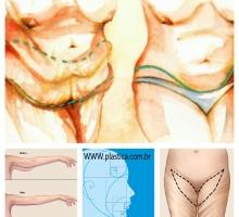 O que você precisa saber sobre a Dermolipectomia