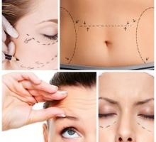 12 tipos de cirurgia plástica que você precisa conhecer