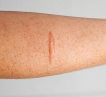Você sabe como é feita a cirurgia de correção de cicatriz? Veja neste artigo!
