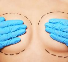 Mastopexia e mamoplastia: entenda as principais diferenças