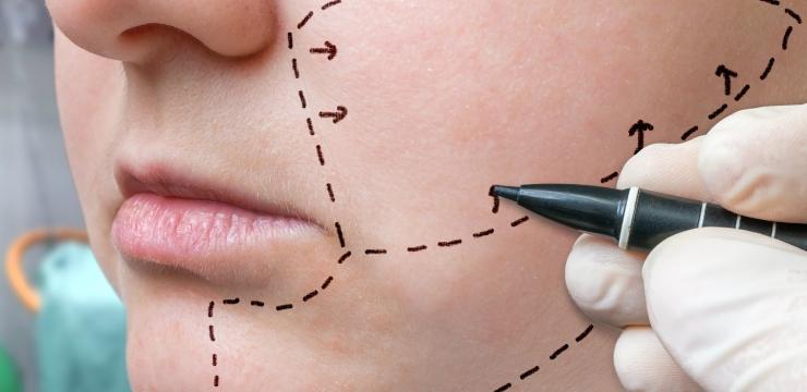 Conheça as principais cirurgias plásticas no rosto