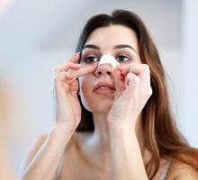 Rinoplastia: conheça o procedimento e seus benefícios!